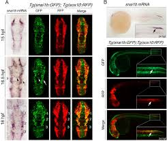 phenotypic chemical screening using a zebrafish neural crest emt