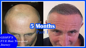 hair transplant month by month pictures fue hair transplant geoff s journey hair loss cure 2016