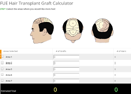 hair transplant calculator fue hair transplant graft calculator at andheri help you to know