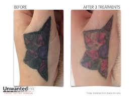 tattoo removal gallery unwanted ink laser tattoo removal