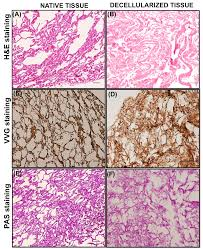 antibacterial activity and composition of decellularized goat lung