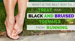 what is the best way to treat black and bruised toenail from