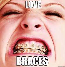Braces Memes - love braces braces girl quickmeme