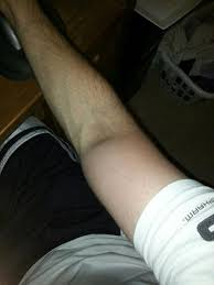 swelling inner arm to above after delt injection