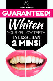 how to whiten your teeth naturally in less than 2 minutes