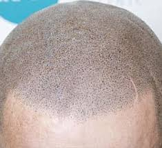 images of hair balding woman gets confidence back thanks to hair tattoo daily