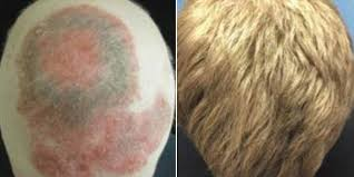 successful hair loss treatment yale scientists use drug to