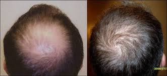 neograft recovery timeline the next generation in hair restoration for men and women general