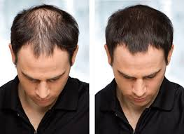 hair transplants in tj reviews hair transplant surgery cost in mexico best prices