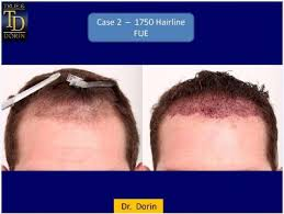 prescreened hair transplant physicians the importance of individualized hair transplant plans regrow