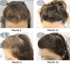 hair styles for women with center bald spots belgravia hair loss blog