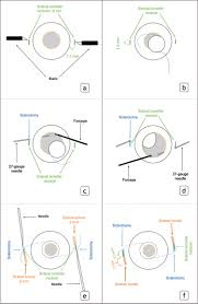 sutureless intrascleral fixated intraocular lens implantation