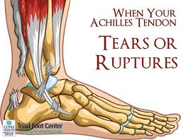 Foot Tendons Anatomy 29 Best Injury Recovery Images On Pinterest Foot Pain Achilles