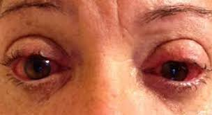 Eyes Are Sensitive To Light Sjogren U0027s Syndrome Pictures