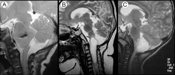 Brainstem Mass Surgical Management Of Brainstem Expanding Lesions The Role Of