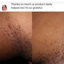 constant ingrown hairs on pubis puretropix ingrown pubic hair guide