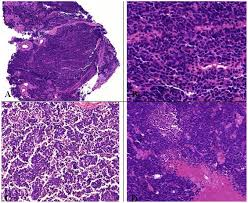 cancers free full text neuroendocrine tumors of the lung html