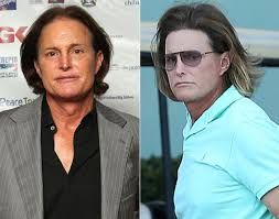 what is happening to bruce jenner bruce jenner steps out after alleged adam s apple surgery sports