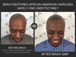 hairline restoration for black men african amercian hairline restoration through scalp