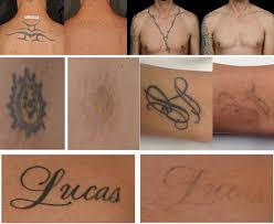 mirabile m d tattoo removal