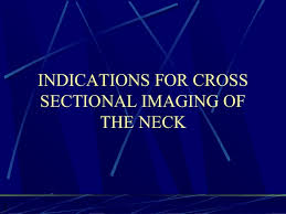 Neck Cross Sectional Anatomy Ct Anatomy Of The Neck Spaces
