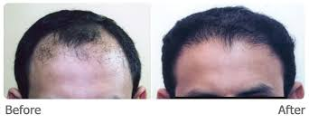 hair transplant costs in the philippines hair transplant philippines cosmetic plastic surgery