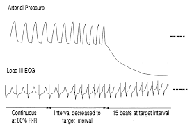 effect of rapid pacing and t wave scanning on the relation between