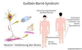 muskelschwäche guillain barré syndrom symptome
