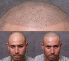which hair loss treatment is best for me u2013 newinhairtransplant