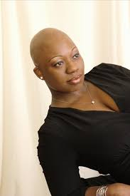 balding black women natural hair syyle 92 best alopecia images on pinterest hair cut hair dos and