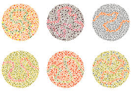 History Of Color Blindness How Color Blindness Is Tested American Academy Of Ophthalmology
