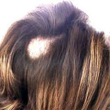 hair styles for trichotellamania hair pulling disease hairstyle ideas