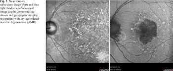 blue light and macular degeneration fig 2 near infrared reflectance image left and blue light fundus