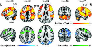 frontiers eye movements during auditory attention predict