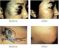 candela tattoo removal laser ri rejuvaderm medispa