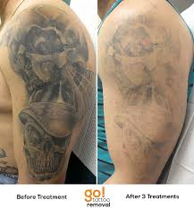 with 3 laser tattoo removal treatments done most of the grey wash