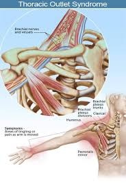 Tos Thoracic Outlet Syndrome Symptoms Surgery And Tests