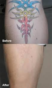 laser u2013 tattoo removal laurea cosmetic surgery sydney