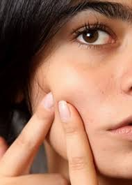 Face Mapping Acne Best Face Masks For Every Skin Problem College Fashion