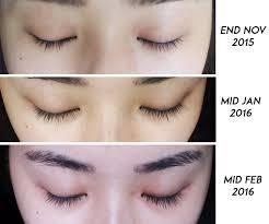 before u0026 after xlash eyelash serum review mongabong