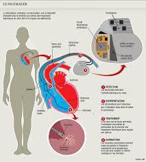 pacemaker chambre santé pirater un pacemaker est possible mais difficile santé