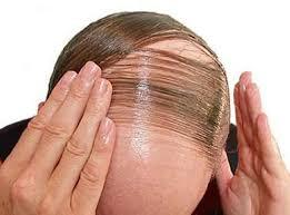 obat rambut penumbuh rambut botak mengatasi rambut rontok obat rambut rontok parah rambut botak