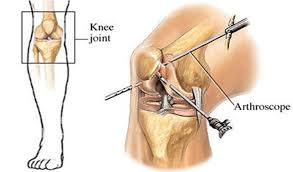 My Knee Hurts When I Go Down Stairs by Anterior Knee Pain Brisbane Knee And Shoulder Clinic
