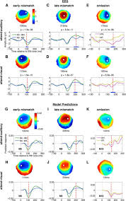 silent expectations dynamic causal modeling of cortical