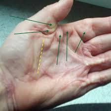knoten handinnenfläche krankheitsformen dupuytrensche kontraktur de dupuytren