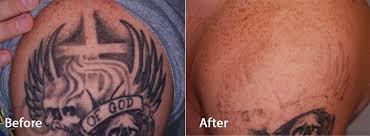 picoway at contour all colors no problem contour dermatology