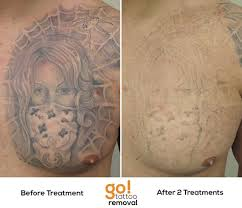 amazing progress on this chest piece after 2 laser tattoo removal