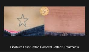 laser tattoo removal before and after beverly hills