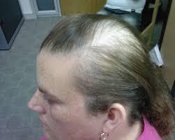 Evening Primrose Oil For Hair Loss The Hair Centre Hair Loss Photos Treated
