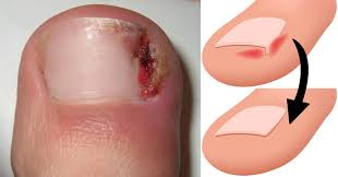 8 simple habits that treat u0026 prevent ingrown toenails david